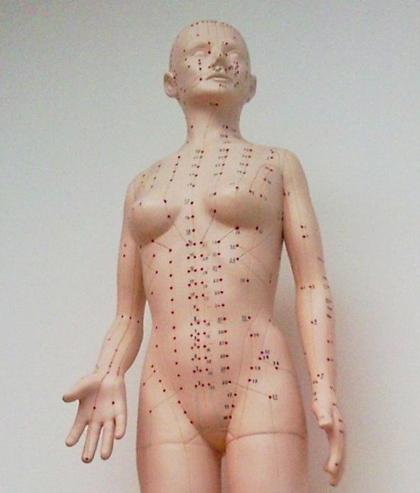 La medicina integrativa es capaz de aunar y agrupar los conocimientos venidos desde las áreas más diversas, como la acupuntura.
